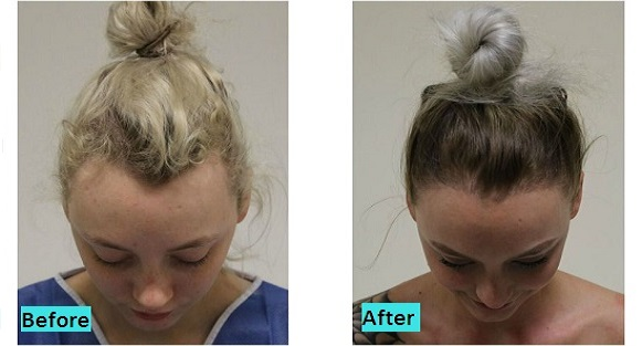 best-hair-loss-treatment-in-pune